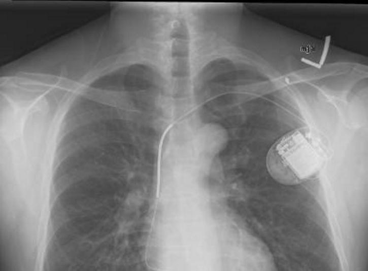 Implantable-cardioverter-defibrillator