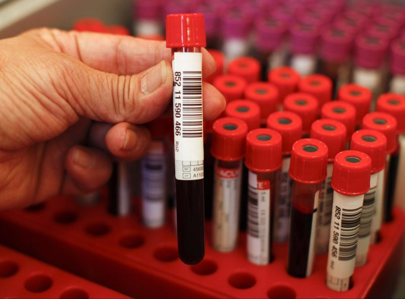Ransomware Gang Collects Data from Blood Testing Lab